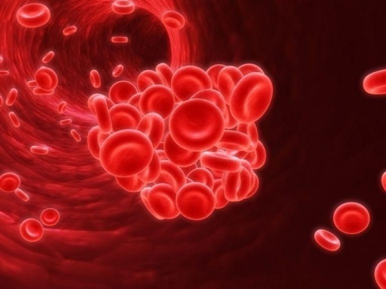 Повышенная вязкость крови