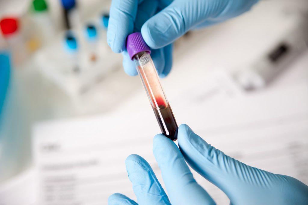 Газоанализатор крови Интермедика