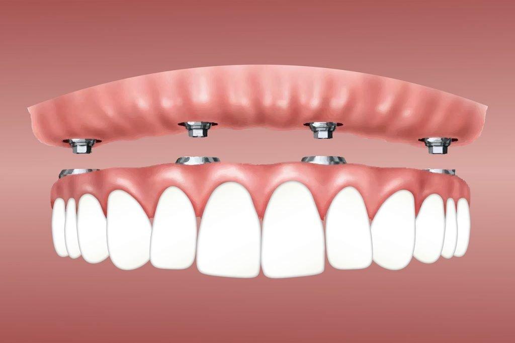 Реконструкция зубного ряда - методы и характеристики